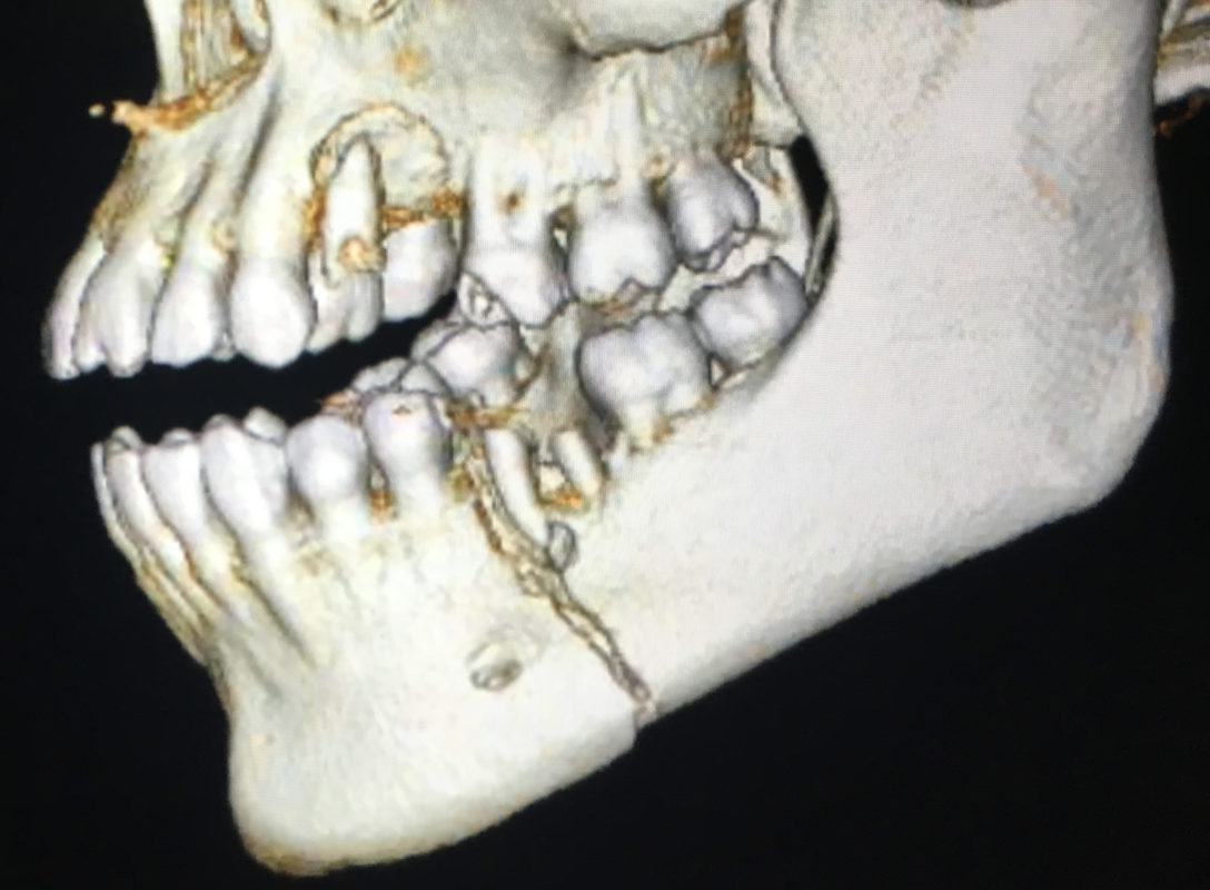 Facial Trauma Andrew R Rahn Dds Jaw Wiring Surgery The Treatment Of And Fractures Are Treated Similar To In Other Parts Body If You Break Your Arm A Cast Is Placed Stabilize